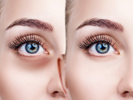 Female eyes with bruises under eyes before and after treatment.