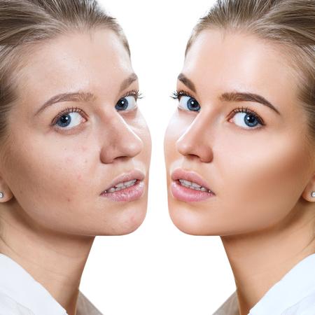 Mujer joven antes y después del tratamiento de la piel y el maquillaje. Foto de archivo