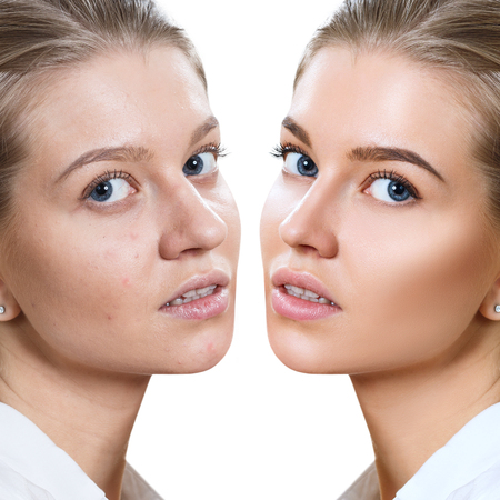 Young woman before and after skin treatment and makeup. Stock Photo