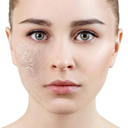 Giovane donna con pelle disidratata. Archivio Fotografico
