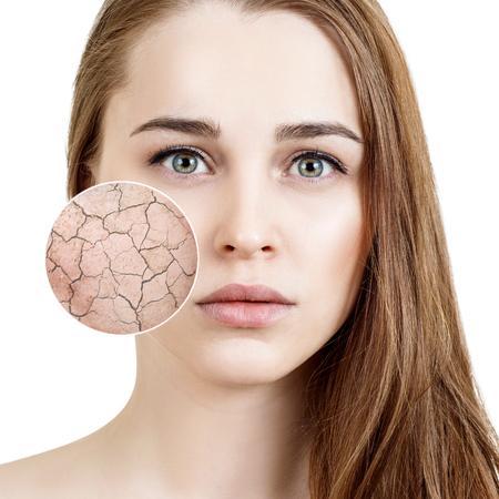 Le cercle de zoom montre la peau sèche du visage avant l'humidification.