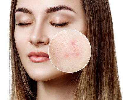 Young woman with acne skin in zoom circle. 版權商用圖片