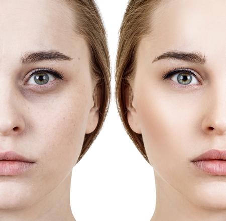 Mujer con hematomas debajo de los ojos antes y después del tratamiento cosmético.