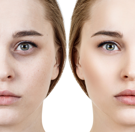Woman with bruises under eyes before and after cosmetic treatment.