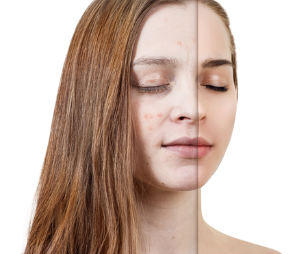 Young woman before and after skin treatment and makeup. Banque d'images