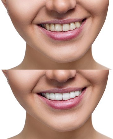 Teeth of young woman before and after whitening. Banco de Imagens