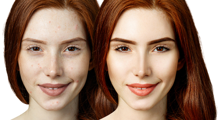 Redheaded woman before and after treatment and makeup.