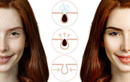 La mujer muestra cómo contaminar y limpiar los poros de la cara. Foto de archivo