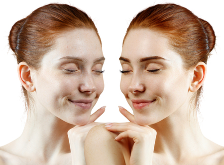 Redhead woman before and after skin treatment and makeup. Imagens