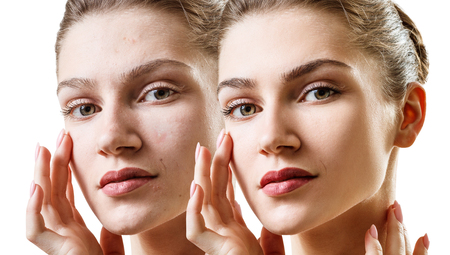Young sensual woman before and after skin treatment.