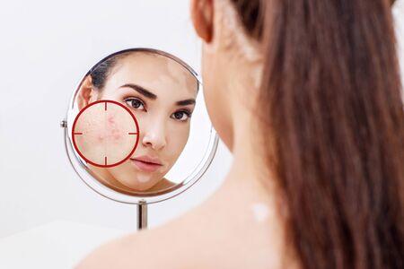 Jeune femme avec la peau d'acné dans l'objectif rouge.