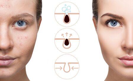 Muestra gráficamente cómo contaminar y limpiar los poros del rostro. Foto de archivo