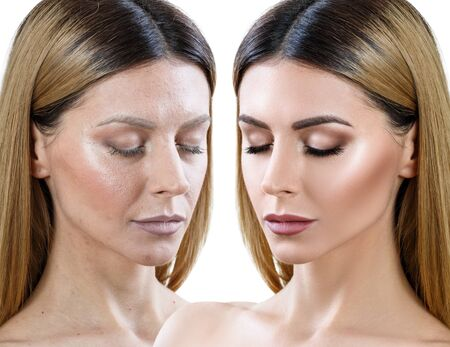 Woman before and after skin treatment and makeup.