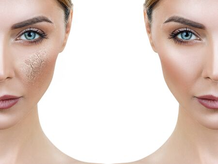 Face of woman before and after the moisturizing procedure.