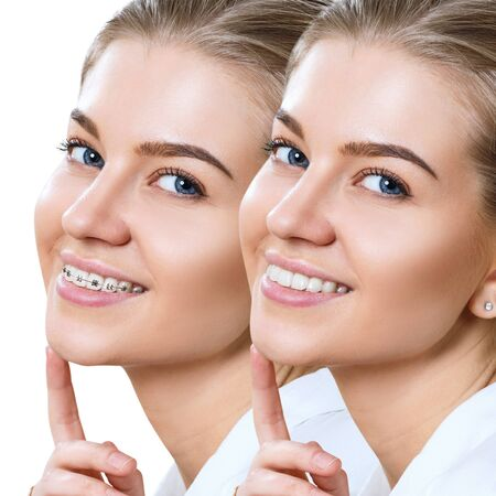 Beautiful smile with perfect teeth before and after braces. Banque d'images - 129149641