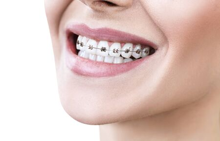 Young woman smiling with braces on teeth.
