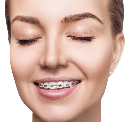 Giovane donna con bretelle sui denti.