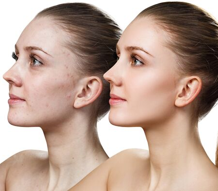 Comparison portrait of young woman before and after retouch.
