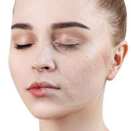 Cercle sur les spectacles de la jeune femme avant et après le traitement et le maquillage. Banque d'images