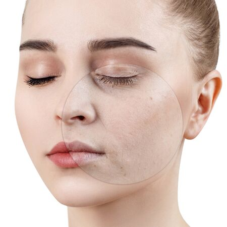 Circle on young woman shows before and after treatment and makeup. Stock Photo