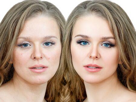 Femme souffrant d'acné avant et après le traitement et le maquillage.