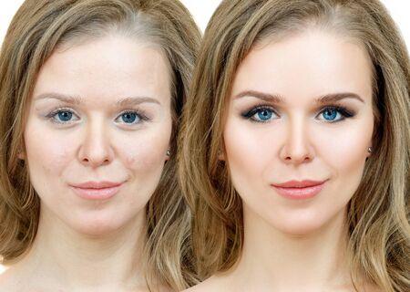Frau mit Akne vor und nach der Behandlung und Make-up.