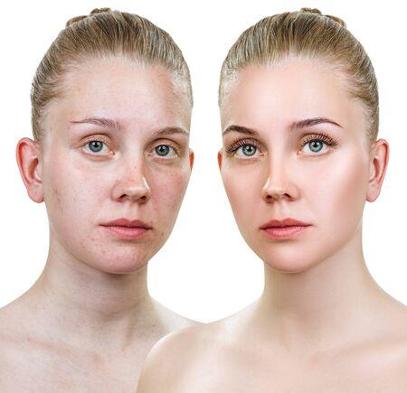 Comparison portrait of young woman with and without makeup. Foto de archivo