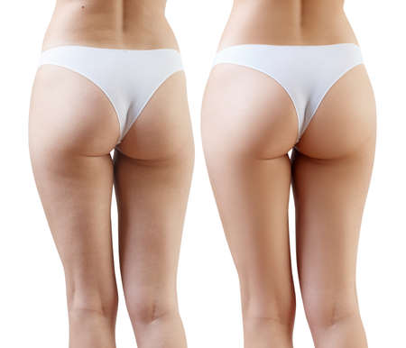 Female buttocks before and after cellulitis treatment. Reklamní fotografie