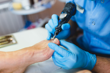 Toenail fungus treatment with foot laser at laser nail therapy clinic.