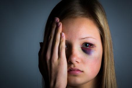 mujer golpeada: Adolescente triste miserable víctima de abuso infantil Foto de archivo