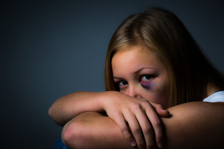 beaten woman: Scared young girl with black eye and bruise looking Stock Photo