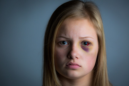 Young blonde girl with heavy bruising and swelling