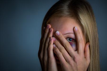 mujer golpeada: Muchacha rubia joven Intimidado con moretones y el ojo negro Foto de archivo