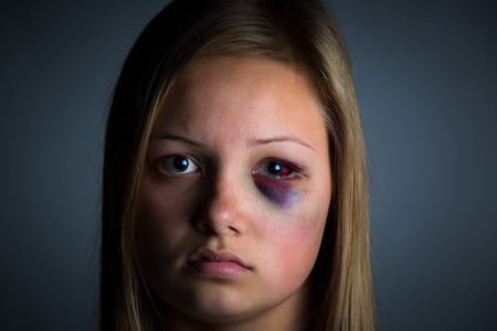 abusive: Child abuse victim with heavy bruising and black eye