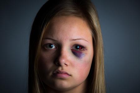 mujer golpeada: Víctima de abuso infantil con moretones pesada y el ojo negro