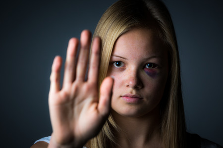 beaten woman: Blonde teenage girl with black eye with hand up to say stop