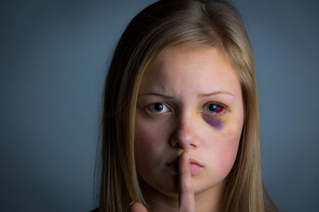 beaten woman: Victim of abuse holding finger to mouth quiet sign Stock Photo