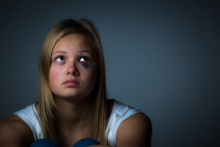 battered: Pretty blonde girl with black eye and bruise Stock Photo