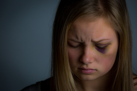 beaten: Closer up shot of young blonde girl who has been the victim of abuse