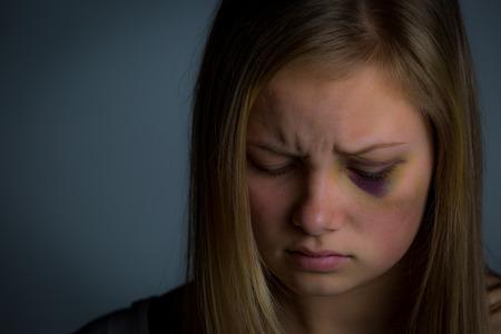 mujer golpeada: Más cerca de tiro de la muchacha rubia joven que ha sido víctima de abuso