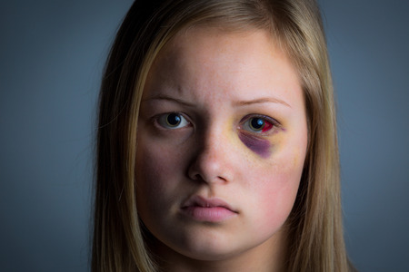 mujer golpeada: Chica joven con el ojo negro y los moretones