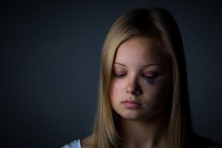 mujer golpeada: Adolescente rubia con moretones pesada Foto de archivo