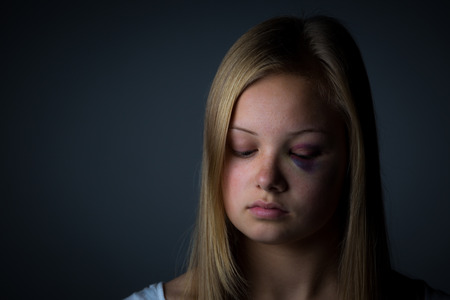 battered woman: Blonde teenage girl with heavy bruising