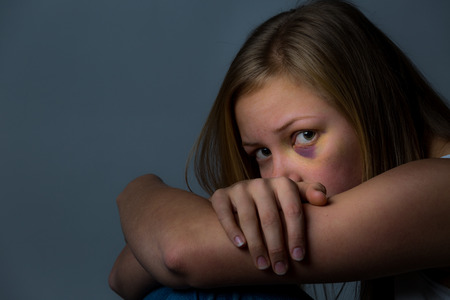 intimidated: Scared and worried young girl with heavy bruising around eye