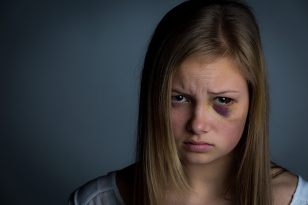 child alone: Sad and intimidated girl with heavy bruising