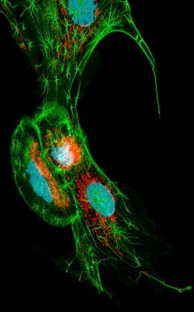 nuclei: Fibroblast cells, fluorescence microscopy, nuclei, mitichondria, and microfilaments Stock Photo