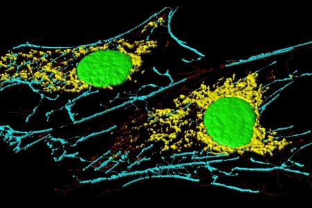 nuclei: Microfilaments, mitochondria, and nuclei in fibroblast cells Stock Photo