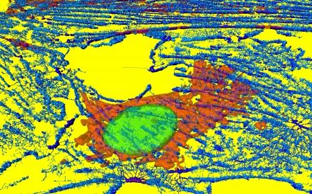 Microfilaments, mitochondria, and nuclei in fibroblast cell Stock Photo - 16428349