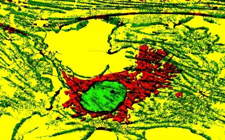nuclei: Microfilaments, mitochondria, and nuclei in fibroblast cell
