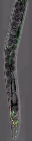 Caenorhabditis elegans, a free-living transparent nematode  roundworm , about 1 mm in length